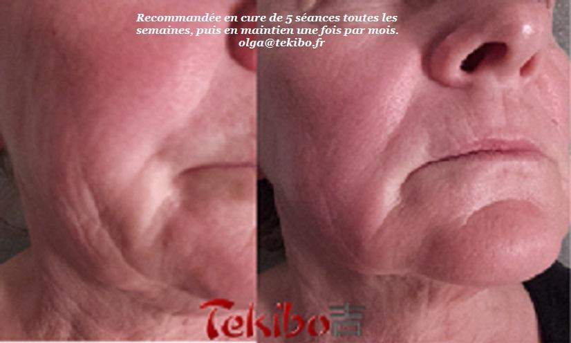 tekibo massage visage japonais avant-aprés